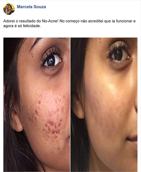 depoimento no acne 1