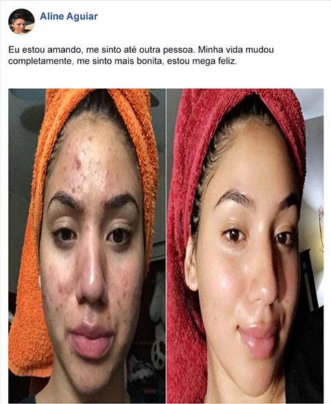 depoimento no acne 2